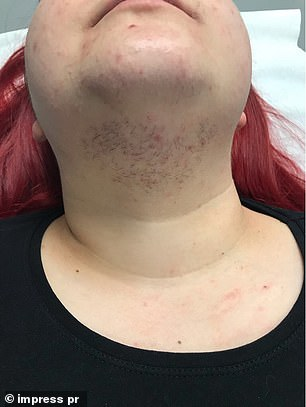 Due to high levels of 'male hormones' in her body ,dark, coarse hair grew on her chin, neck and face