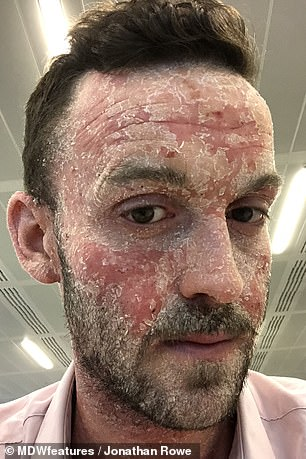 Mr Rowe, from London, pictured when his eczema was at its worst