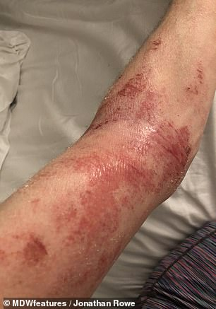 Mr Rowe's eczema covered his entire body, face, neck, back, arms and legs and he said: 'It was pretty uncomfortable, and it was seriously controlling my life as I would take a lot of time off work'