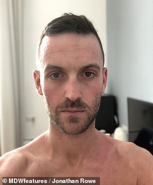 Mr Rowe (pictured recently) says dermatologists are reluctant to believe topical steroid withdrawal is real and as a result 'thousands of other people' could be trapped on the medications