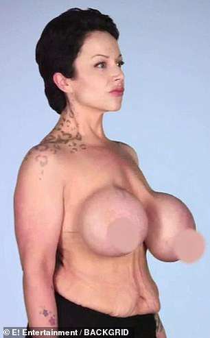 Looking for a fix: Gia, who wears a 34N bra, wanted her lopsided breasts to be symmetrical