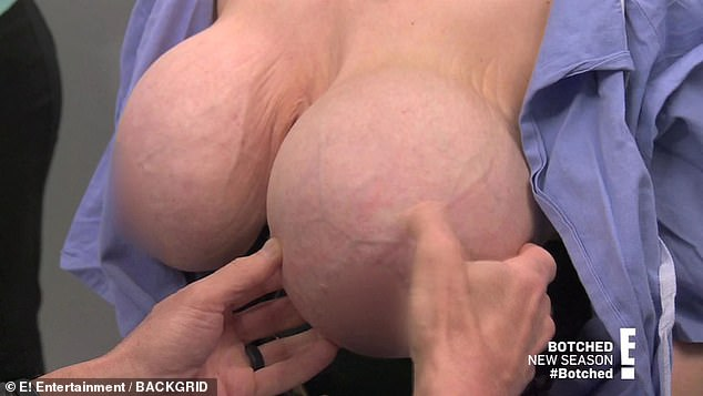 Yikes: Dr. Dubrow was shocked to realize that the implant in her left breast is upside down.'This is the back label right there. You can see the back label of the implant,' he told her