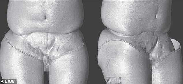 A computer reconstruction of Ray's body shows the damage that left him with just a 1.5cm piece of penis tissue, no scrotum and a chunk of his abdomen missing (Pictured from the front, on the left, and side, on the right)