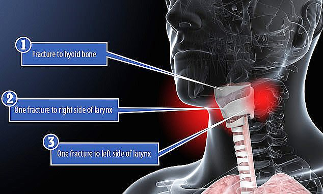 Epstein's autopsy report found his neck had been broken in several places, including the hyoid bone located near the Adam's apple
