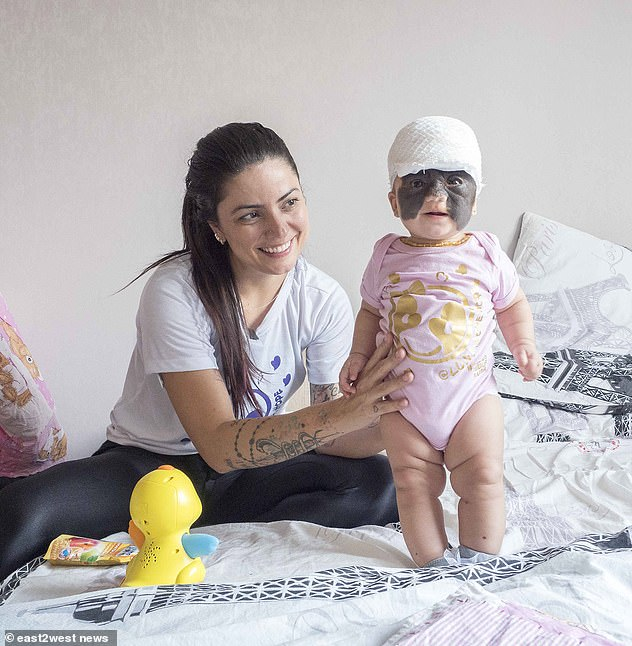 The 36-year-old Brazilian native gave DailyMail.com exclusive access to Luna's treatment, which will remove the birthmark without scars