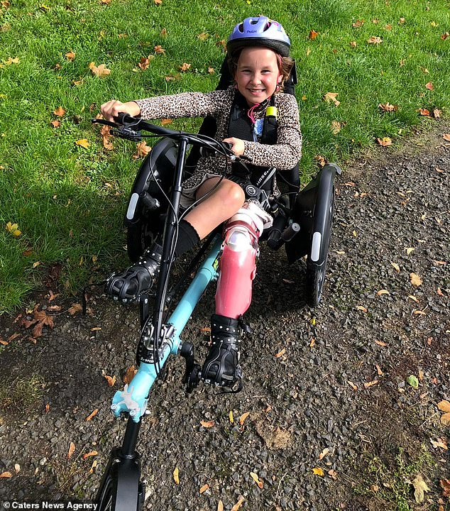 Amelia's mother added that she 'shows off her leg with pride' and was not putt off by having to have the procedure