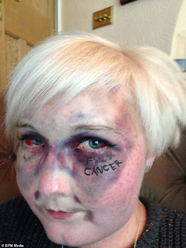 Kathryn Cartwrightbecame an inspirational figure since her leukaemia diagnosis 13 years ago, aged 16.She wrote 'F***k cancer' for a viral selfie in 2014 after falling from her wheelchair and bruising her face (pictured). She died on January 18, her family have announced