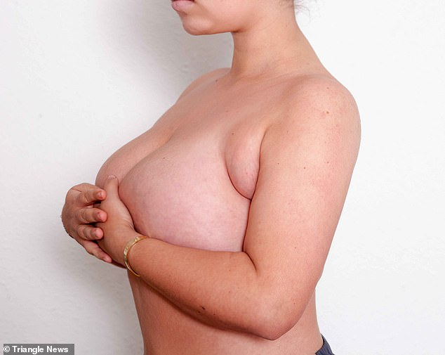 Ms Elliswas left 'traumatised' by her two extra breasts under her armpits, which first appeared when she was 12. She is pictured before her surgery