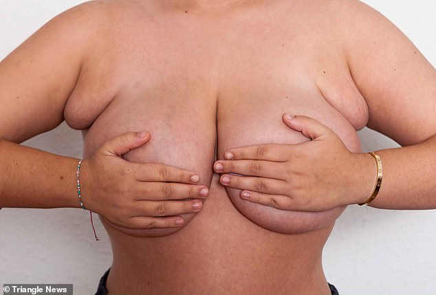 Accessory breast tissue causes breast tissue to grow elsewhere, sometimes with nipples. Pictured, Ms Ellis's extra breasts were under her armpits