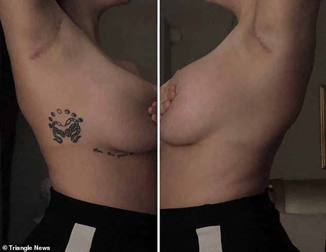 On November 21, 2019 - after scraping together £5,500 - Ms Ellis had an excision procedure. She now has scars under her armpits (pictured)