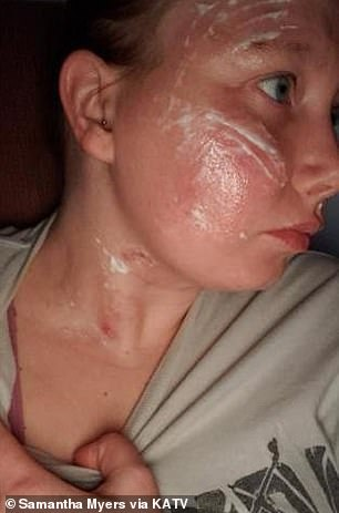She obtained second-degree burns on her neck and chest