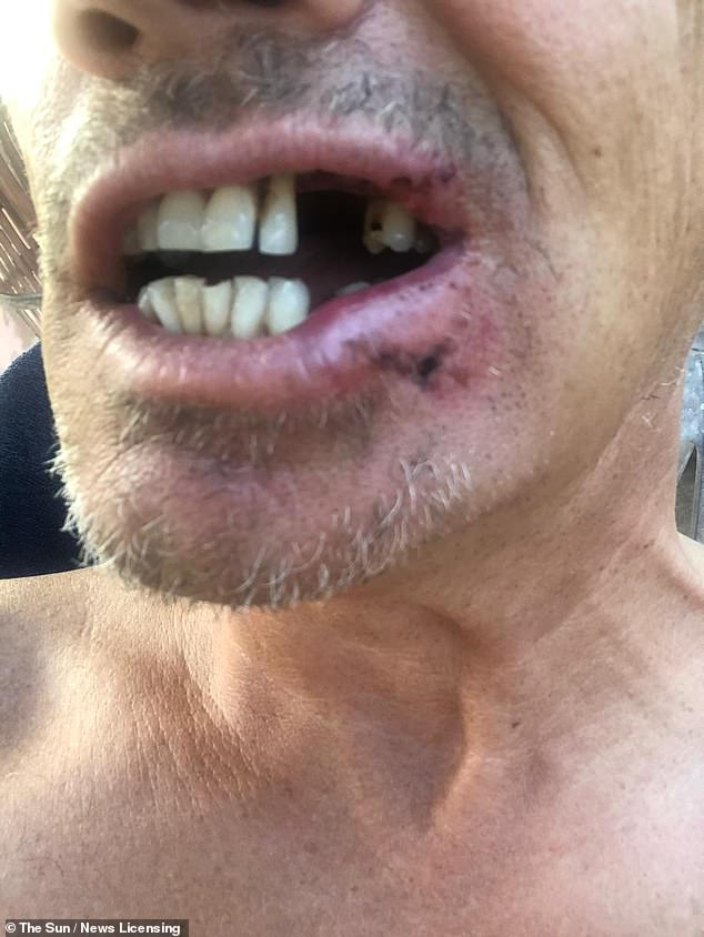 Ouch!The actor showed the immediate trauma caused by the impact of the golf ball flying into his face, with his teeth pushed painfully into his bloodied mouth