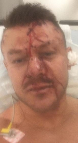 Jonathan Hair, 38, was repeatedly stabbed and his English bulldog was also hurt by the three robbers who burst into his Wearside home
