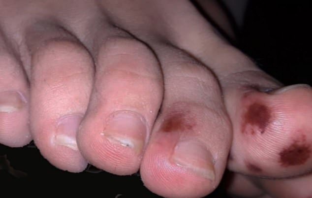 A new symptom of coronavirus - bruising, rashes and foot lesions - has been dubbed `` COVID toes '' (photo)