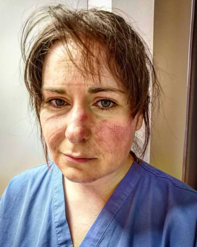ICU nurse Aimee Goold posted a heartbreaking image of her tired and scared face, pleading with people to stay home