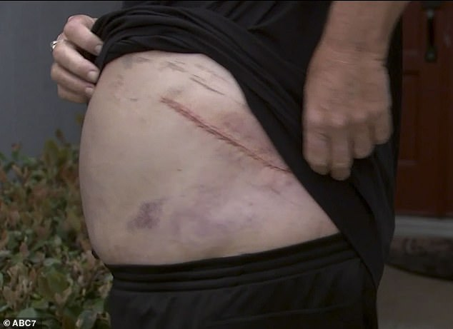 Winsor shows off his scars. He said Abdul-Jabbar stabbed him seven times during the argument.