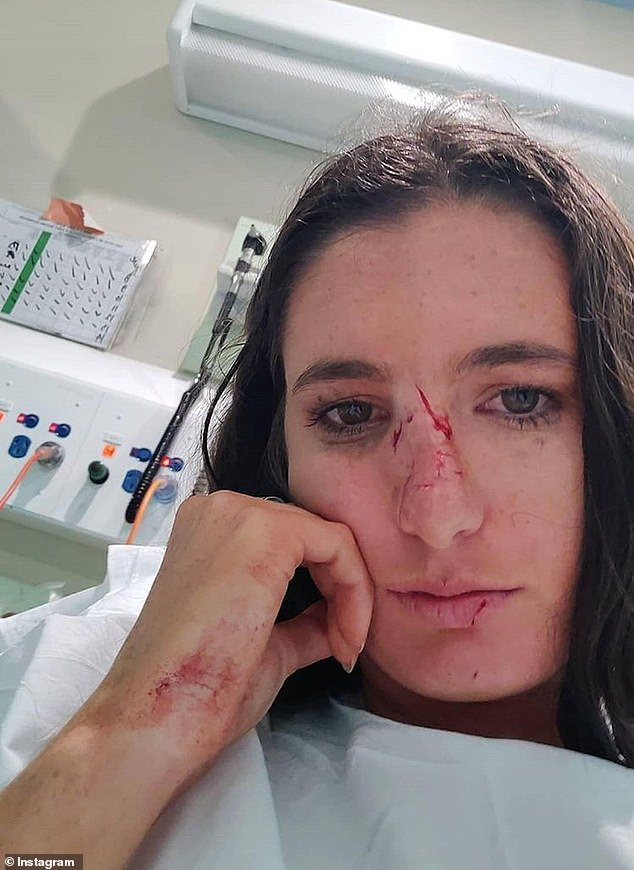 Some of the cuts Ms Jeffers suffered during her post-lockdown celebrations had to be sealed together with glue by doctors