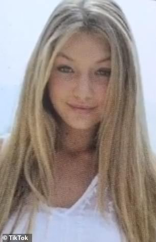 A new look! Two leading plastic surgeons have revealed the cosmetic procedures that Gigi and Bella Hadid may have undergone since high school after their yearbook photos were revealed