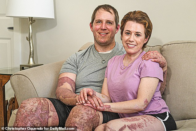 Matthew, 36, told DailyMail.com 'It was darker than the darkest nights you've ever seen. It was scalding hot, agonizing, we were getting pelted with rocks'