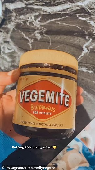 Neat trick! Uploading a video to her Instagram Stories, the 28-year-old said she puts Vegemite over them to minimise the pain