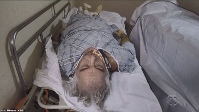 Epstein's dead body, in images from the autopsy shown on CBS 60 Minutes