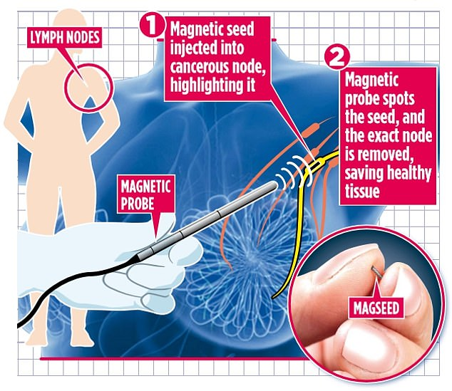 Advanced breast cancer patients may be spared debilitating surgery thanks to a magnetic 'seed' - called Magseed - implanted in the armpit