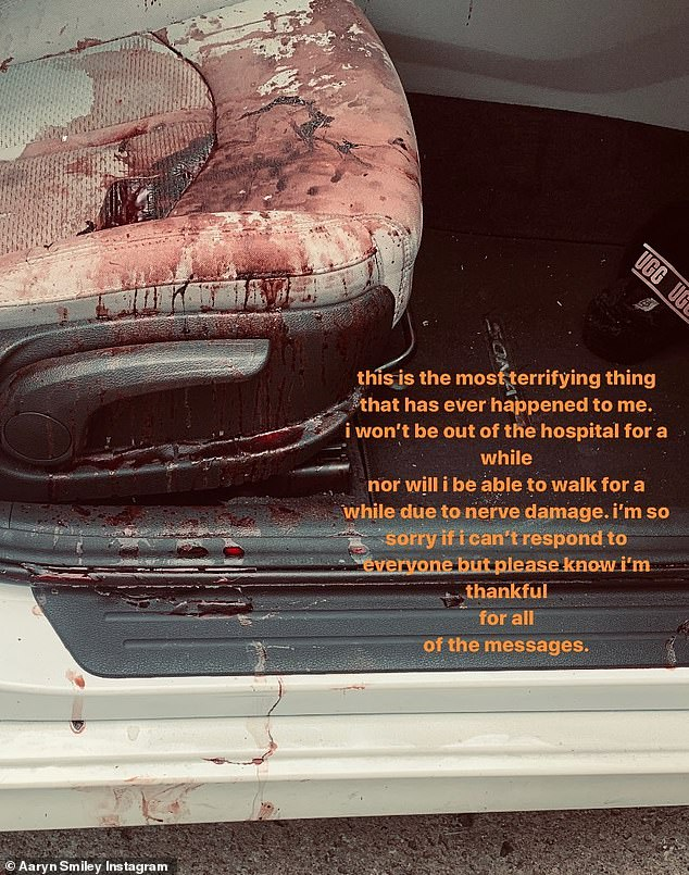 Horrible: The standing actor's daughter shared a photo of the bloody car she was driving in when it was caught in the crossfire at a red light
