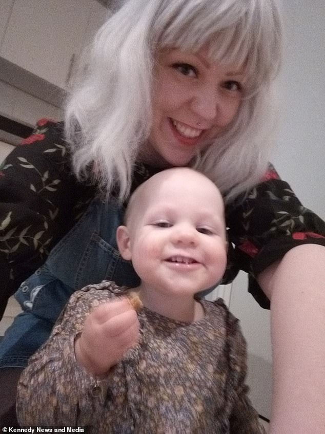 The doting motherwas devastated when her daughter developed the same condition, but wants to prove to the toddler that 'bald is beautiful'