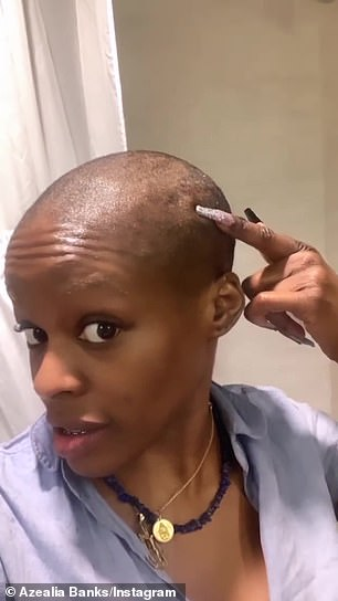 She pointed out scars from scalp burn: 'I'm sitting here reading all the dangers of relaxers like what? Asthma, heart attacks, f***ing mental illness...is that why I'm crazy?'