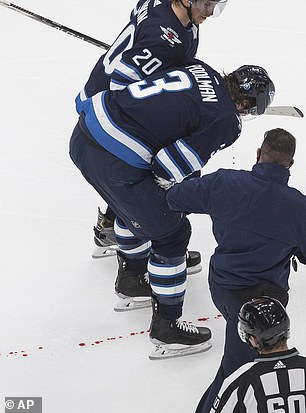 Poolmanleaves a trail of blood on the ice as he is helped off during the second period