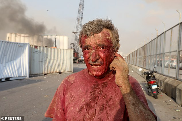 An injured man covered in blood is seen in Beirut following the explosion in Beirut on Tuesday