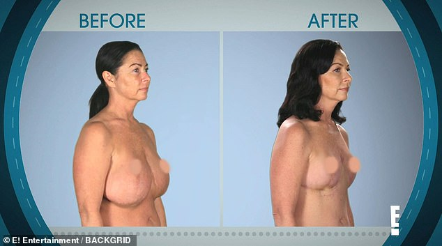 A mother-of-two who previously went under the knife six times to try and reduce her breasts has appeared on the latest episode of Botched, asking doctors for a seventh boob job to 'perk up' her chest. Pictured, Meredith before and after her operation