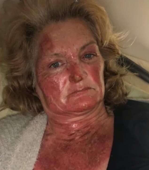 Nine men were arrested on Thursday and eight were charged over the incident which left Mrs Lavell (pictured) with horrific burns to herface, hands and ankles