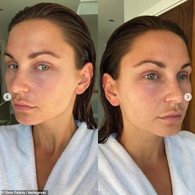 Love the skin your in: Last month Sam showed her bare-faced complexion before and after having treatment on her skin
