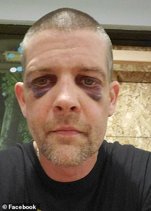Haner is pictured with two black eyes following the attack