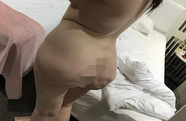 The company which left Shannon in this way have now blocked her on social media and doctors in the UK cannot help her as Brazilian Butt lifts are illegal