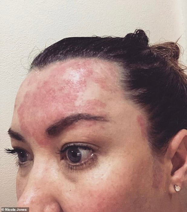 Nicola reported that within 5-6 washes she actually noticed that her scalp psoriasis patch had started to shrink in size and redness had reduced drastically.  Picture, worst case skin condition