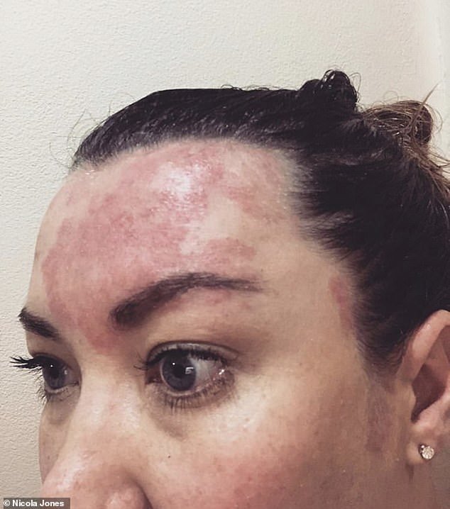 Nicola explained that within 5-6 washes she really noticed the size of her scalp psoriasis patches had started to reduce and the redness had hugely reduced. Pictured, the skin condition at its worst