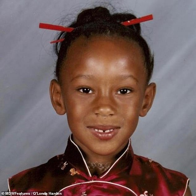 Q'Londa's condition was diagnosed when she was 16 years old and still deals with the effects ten years down the line. The nurse pictured as a child before her ordeal began