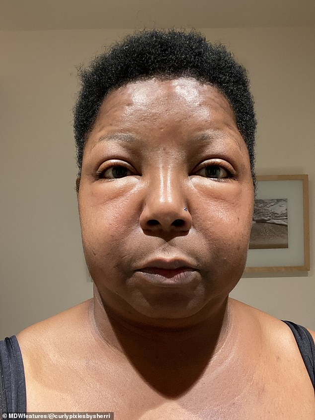 After sending her doctor the shocking pictures of her reaction which was causing her face to swell more by the hour (pictured), she was prescribed an antihistamine to calm the reaction