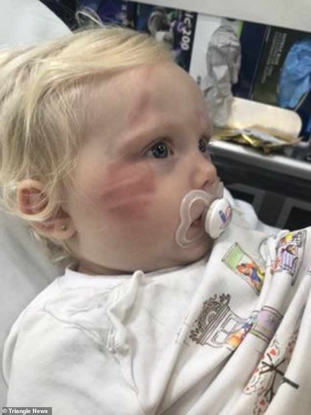 Distraught Victoria Grant posted pictures on social media showing marks on her daughter's face (pictured)