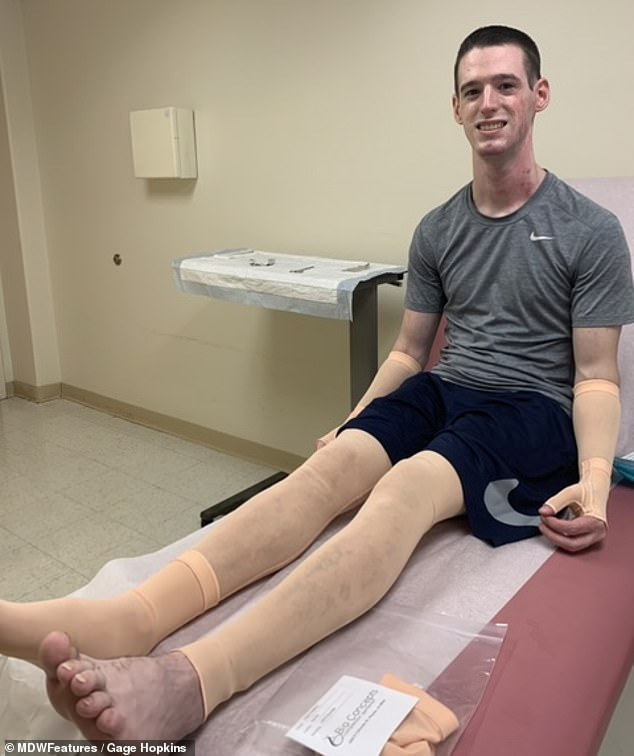Awful: Gage said his dressing changes were the most painful thing he has ever experienced