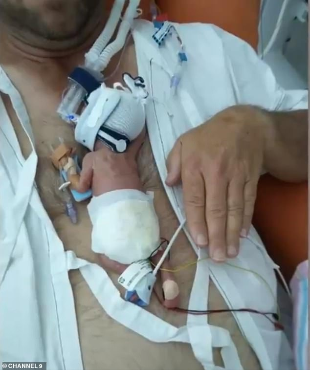 Mimi Marks (pictured on her father's chest) was just 376 grams and not much bigger than her father's hand when she was born at Monash Children's Hospital in Melbourne in April