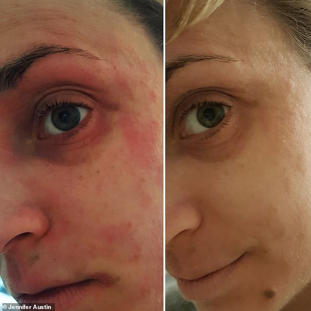 Jennifer (pictured before, left, and after, right, using the cream) attended therapy sessions for her anxiety directly linked to her condition and often suffered panic attacks from worrying about what her eczema will look like when she woke up in the morning