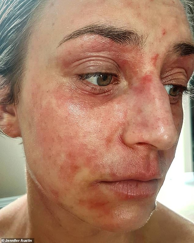 Jennifer has suffered from skin infections due to her eczema and has received phototherapy - which is the administration of doses of bright light - and referrals to dermatologists ¿ but nothing has worked long term