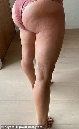 Her varicose veins and extra cellulite