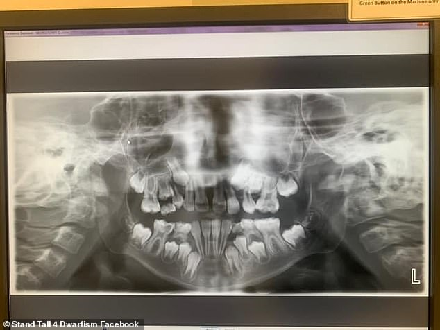 An X-ray of Quaden's mouth showed eight teeth that needed to be removed due to overcrowding