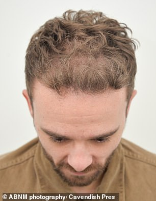 Wow!Jack's outing comes after he proudly showcased the impressive results of his hair transplant
