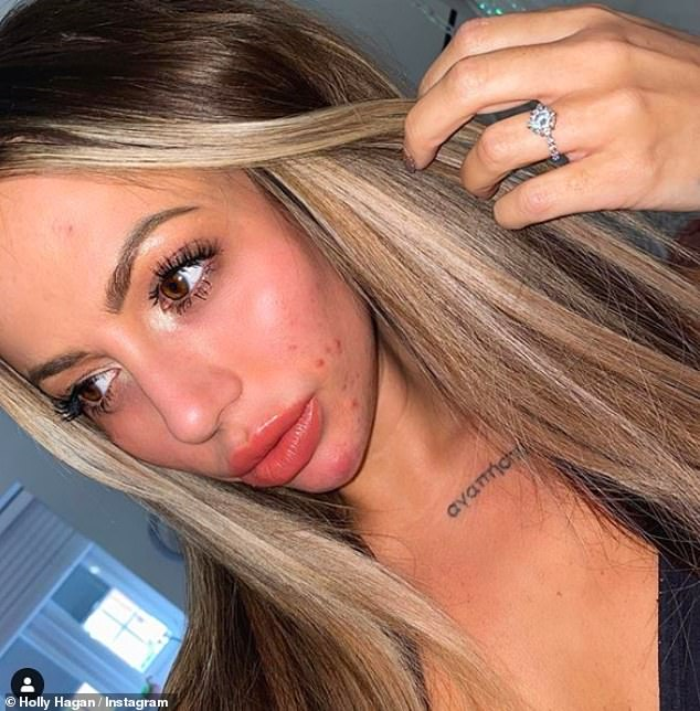 Honesty: Holly Hagan bravely displayed her acne on Tuesday as she discussed her battle with beauty dysmorphia, diets and surgery