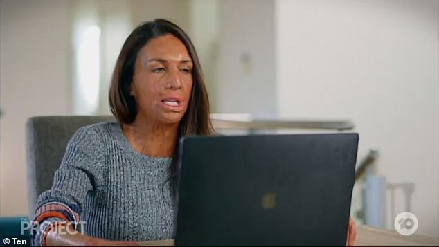 Brave: Turia Pitt (pictured) has detailed the the process of recovering from injuries she sustained in a fire in 2011